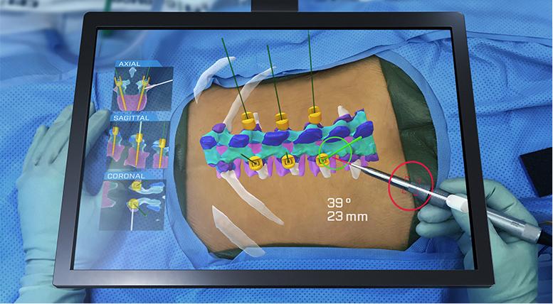 HoloSurgical展示AR+AI手术系统