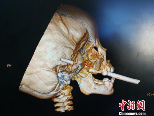 女童摔倒筷子入嘴 这些经验让孩子远离意外